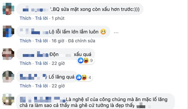 Dàn sao nam Vbiz hậu công khai dao kéo: Việt Anh - Hoàng Tôn lột xác bất ngờ, Lương Bằng Quang còn tuột dốc hơn trước?-7
