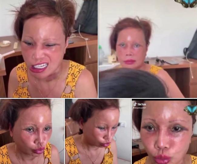 """Cô dâu 63 tuổi ở Cao Bằng sau 2 tháng phẫu thuật căng da mặt, diện mạo khiến ai cũng đồng ý là dao kéo hỏng""""-2"""