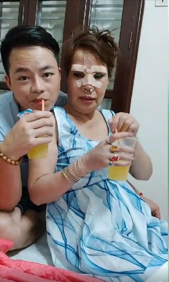 """Cô dâu 63 tuổi ở Cao Bằng sau 2 tháng phẫu thuật căng da mặt, diện mạo khiến ai cũng đồng ý là dao kéo hỏng""""-8"""