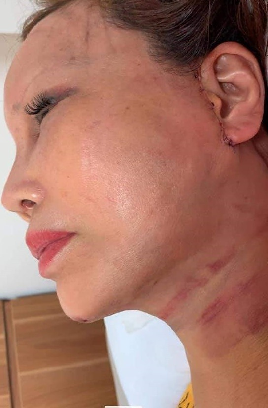 """Cô dâu 63 tuổi ở Cao Bằng sau 2 tháng phẫu thuật căng da mặt, diện mạo khiến ai cũng đồng ý là dao kéo hỏng""""-3"""