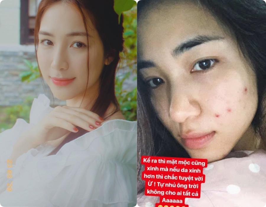 Sao Việt trước và sau khi trang điểm: Người lấm tấm mụn nhọt và quầng thâm, người có làn da mịn mướt-10