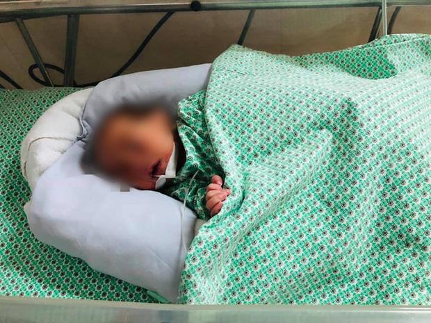 Bé trai sơ sinh bị mẹ bỏ rơi trong khe tường ở Hà Nội sức khỏe tiến triển tốt, có thể xuất viện-1