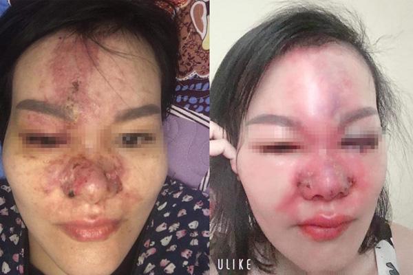 Tai nạn thẩm mỹ gây 'sốc' trên MXH: Mặt sưng vù, lở loét sau khi tiêm filler mũi