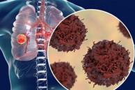 Người đàn ông Quảng Ninh phát hiện 2 loại ung thư cùng chỗ
