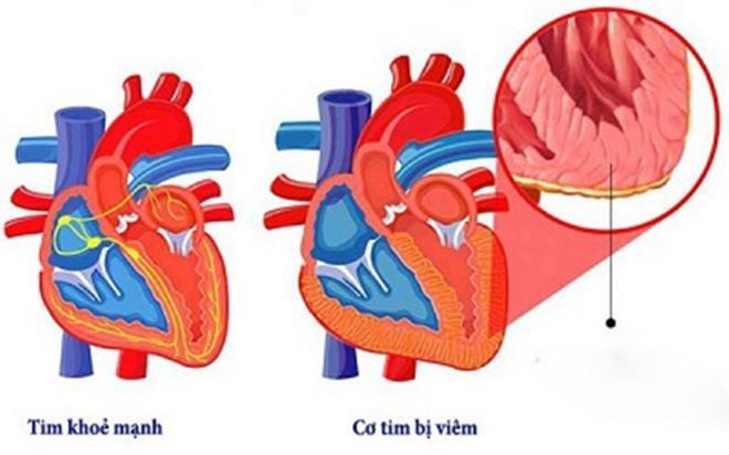 Bệnh nhân COVID-19 đã hồi phục vẫn có thể bị ảnh hưởng tim-1