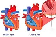 Bệnh nhân COVID-19 đã hồi phục vẫn có thể bị ảnh hưởng tim