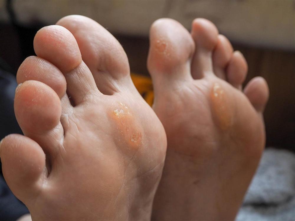 Nếu bỗng dưng thấy bàn chân có 5 sự thay đổi này, coi chừng cơ thể đang mắc trọng bệnh và cần được giải cứu lập tức-3