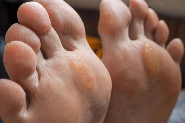 Bàn chân có 5 sự thay đổi này, coi chừng cơ thể đang mắc trọng bệnh
