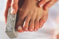 Luôn cảm thấy gót chân bị khô và nứt nẻ: 4 'thủ phạm' là nguyên nhân gây ra vấn đề này nhưng nhiều người không biết