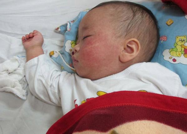 Con 8 tháng tuổi bị sốt cao, người mẹ trẻ đã dùng cách này để hạ sốt khẩn cấp khiến đứa trẻ bị bại não-3