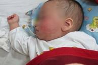 Con 8 tháng tuổi bị sốt cao, người mẹ trẻ đã dùng cách này để hạ sốt khẩn cấp khiến đứa trẻ bị bại não