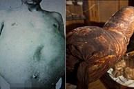 Chuyện kỳ lạ về người đàn ông bị táo bón bẩm sinh, chết khi cố đi đại tiện và ruột già được trưng bày trong bảo tàng Mỹ gây 'sởn da gà'