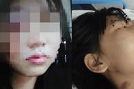 Người phụ nữ ôm gương mặt bê bết máu chạy đến bệnh viện, tiết lộ bi kịch bạo hành gia đình suốt 5 năm và suýt bị chồng chôn sống