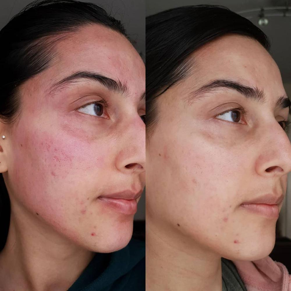 5 lọ toner AHA tẩy da chết đỉnh cao: Tái sinh làn da từ sần sùi đầy rẫy mụn ẩn thành láng mịn, trắng sáng chỉ trong vài tuần-2