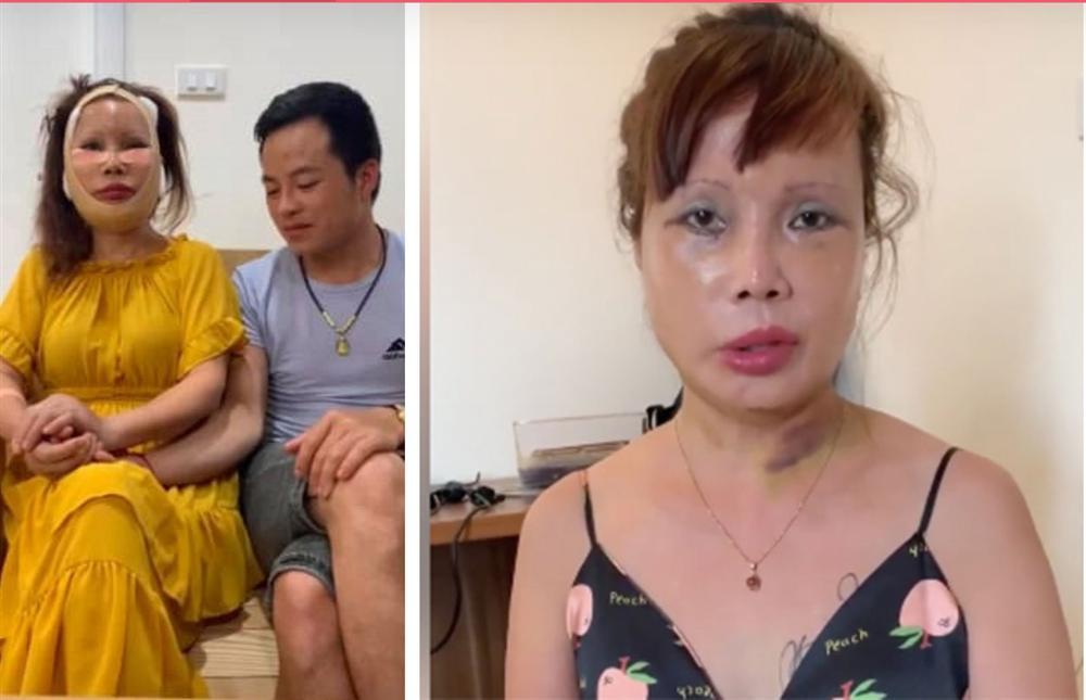 """Bức xúc vì bị dân mạng sửa ảnh đến biến dạng, cô dâu 63 tuổi livestream chọc tức"""" cộng đồng mạng: Càng ném đá tôi càng được nhiều tiền""""-2"""