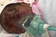 Yên Bái: Xót xa chứng kiến bé trai sơ sinh bị bỏ rơi bên vệ đường, trên mặt nhiều vết xước chằng chịt