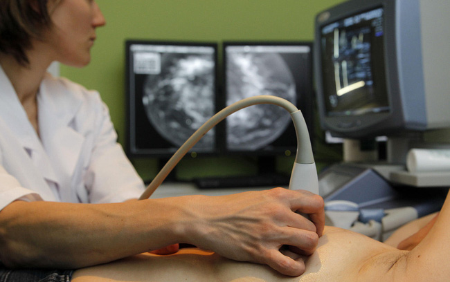Nhầm tưởng bản thân mắc viêm vú do cho con bú, người phụ nữ té ngửa khi nhận được kết quả chẩn đoán ung thư vú-3