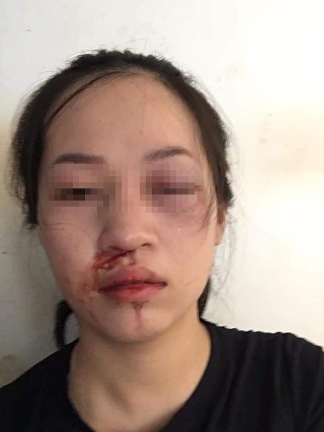 CSGT Tuyên Quang lên tiếng sau khi bị tố dùng gậy vụt vào mặt người phụ nữ vì không chấp hành hiệu lệnh dừng xe-1