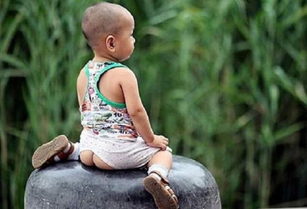 Bé gái 1 tuổi mắc bệnh lây truyền qua đường tình dục, thủ phạm là cách mặc quần mà nhiều cha mẹ mắc-1