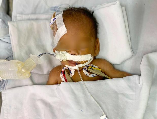 Bé trai sơ sinh nặng 1,4kg bị bỏ rơi trước cổng chùa đã được bố mẹ đến đón về sau 2 tháng-3