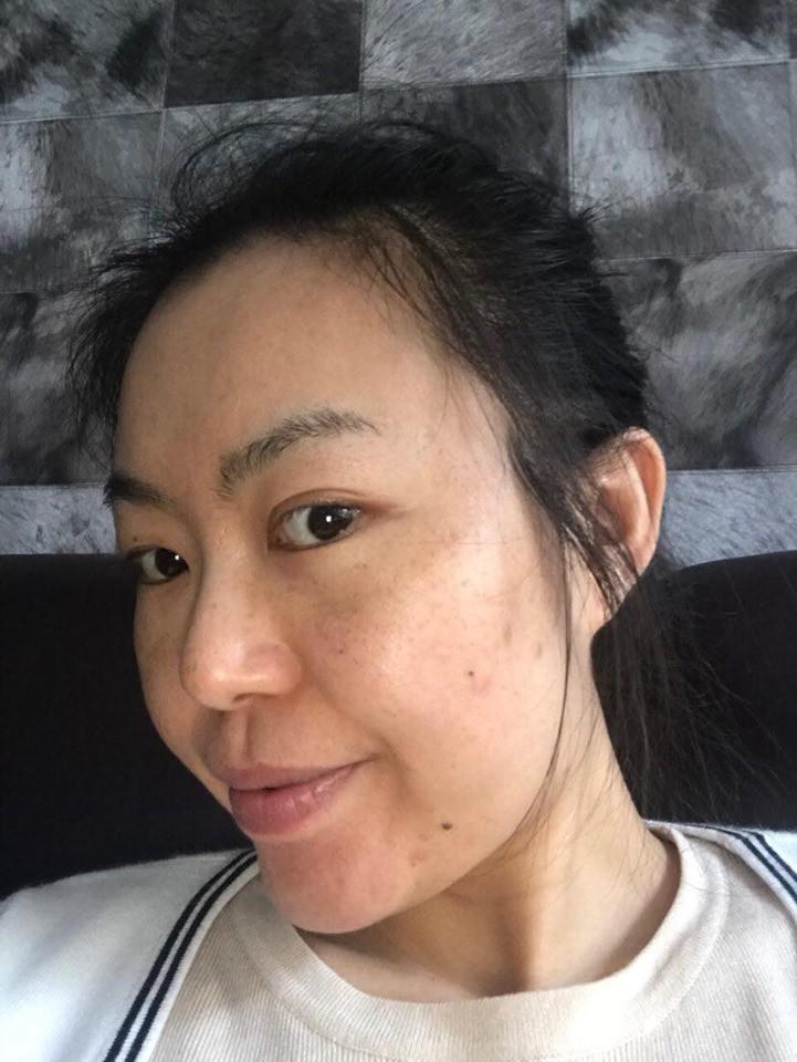 3 thành phần được ví như phép màu hồi sinh làn da bị nám, tàn nhang: Chị em ngoài 30 tuổi da đang lão hóa cần tìm hiểu ngay còn kịp-1