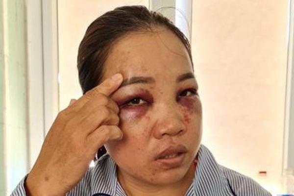 Người đàn bà bị chồng cũ tìm đến tận nhà đánh đập dã man-1