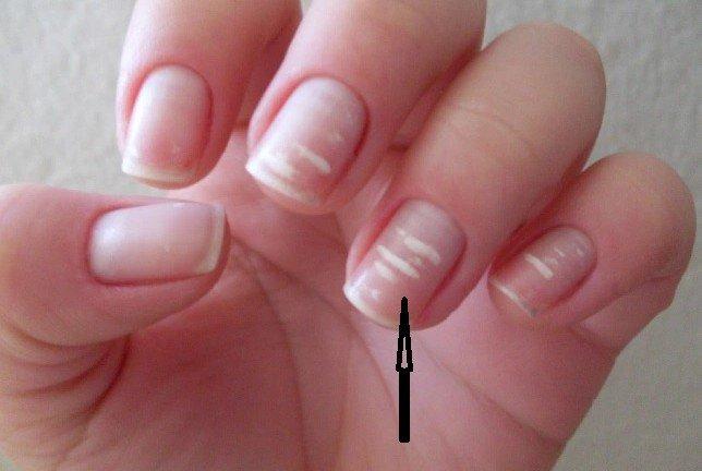 """4 dấu hiệu trên móng tay chỉ điểm"""" trong người bạn đang có mầm bệnh-1"""
