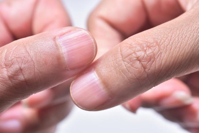 """4 dấu hiệu trên móng tay chỉ điểm"""" trong người bạn đang có mầm bệnh-3"""