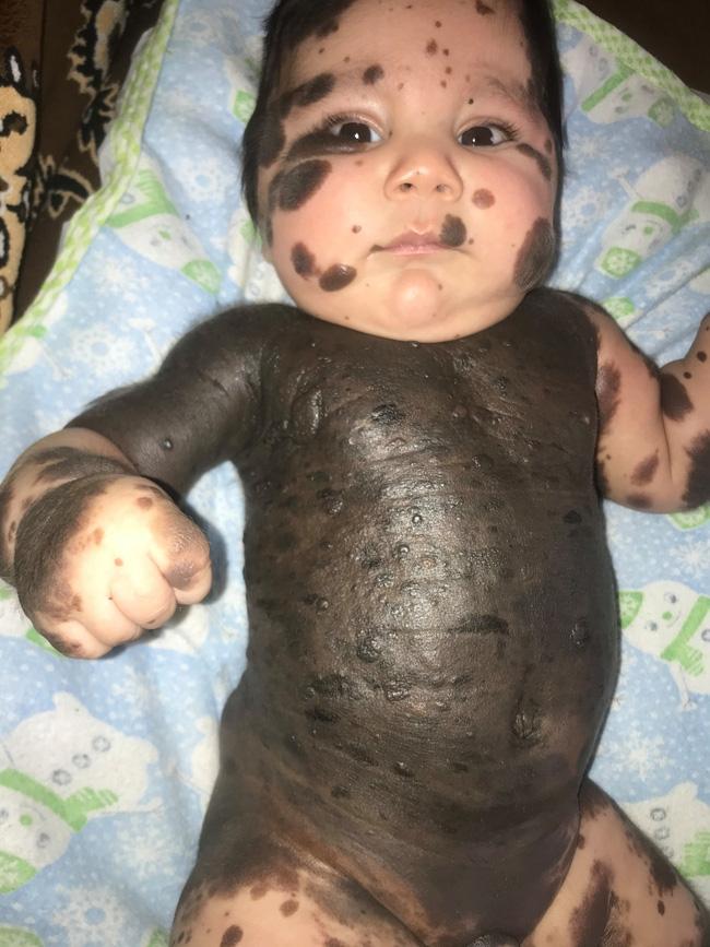 Gặp con lần đầu tiên, bà mẹ kinh hoàng khi thấy toàn thân con phủ kín một màu đen kỳ lạ-1