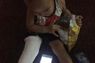 Xôn xao bé trai 2 tuổi ở Thái Nguyên gãy chân sau khi đến lớp, gia đình 'tố' cô giáo tự đưa đến trạm y tế mà không thông báo