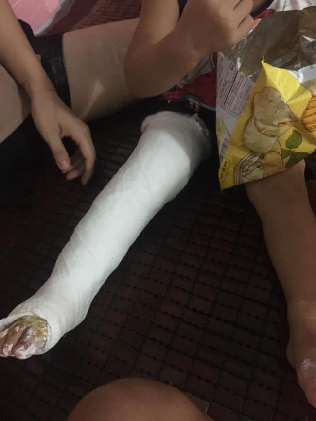 Xôn xao bé trai 2 tuổi ở Thái Nguyên gãy chân sau khi đến lớp, gia đình tố cô giáo tự đưa đến trạm y tế mà không thông báo-2