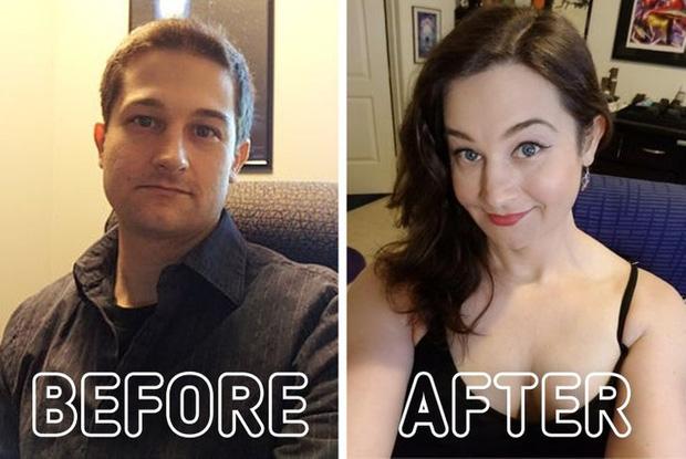 Loạt ảnh trước - sau của những ca phẫu thuật chuyển giới thành công mĩ mãn chứng tỏ khi được là chính mình bạn mới tỏa sáng rực rỡ nhất-12