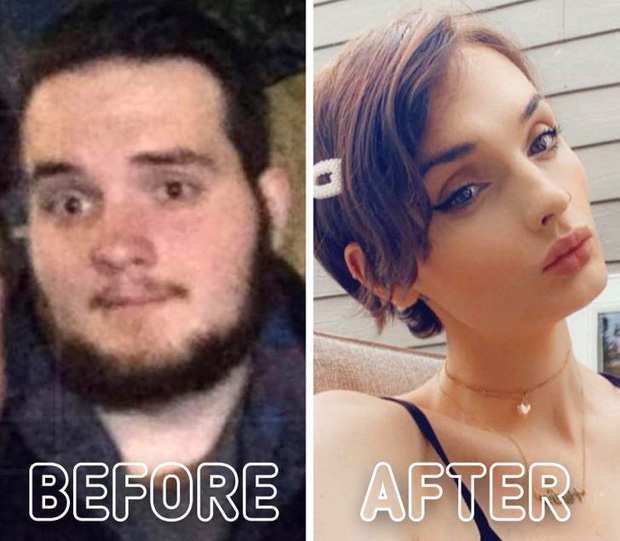 Loạt ảnh trước - sau của những ca phẫu thuật chuyển giới thành công mĩ mãn chứng tỏ khi được là chính mình bạn mới tỏa sáng rực rỡ nhất-13