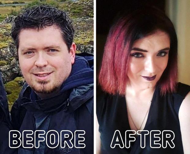 Loạt ảnh trước - sau của những ca phẫu thuật chuyển giới thành công mĩ mãn chứng tỏ khi được là chính mình bạn mới tỏa sáng rực rỡ nhất-14