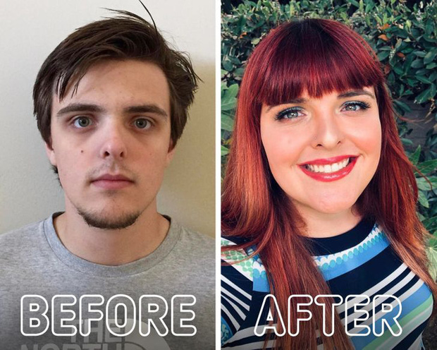 Loạt ảnh trước - sau của những ca phẫu thuật chuyển giới thành công mĩ mãn chứng tỏ khi được là chính mình bạn mới tỏa sáng rực rỡ nhất-19