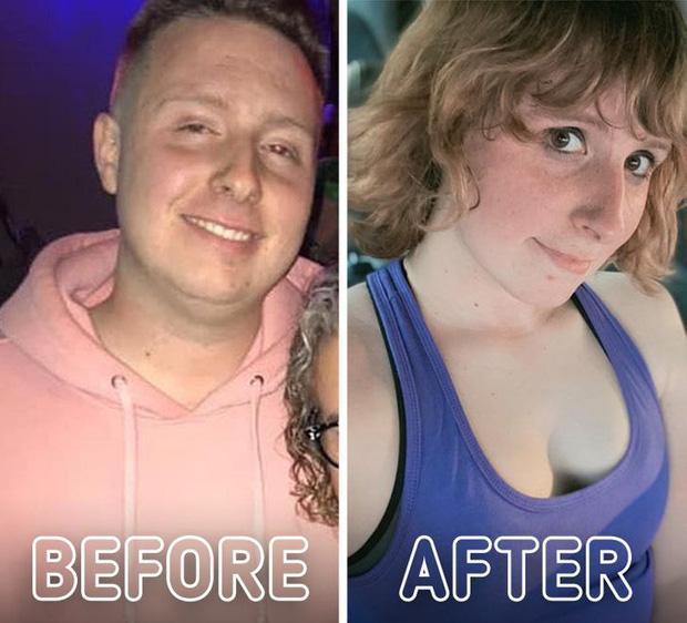Loạt ảnh trước - sau của những ca phẫu thuật chuyển giới thành công mĩ mãn chứng tỏ khi được là chính mình bạn mới tỏa sáng rực rỡ nhất-20