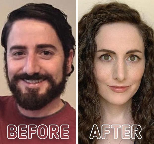 Loạt ảnh trước - sau của những ca phẫu thuật chuyển giới thành công mĩ mãn chứng tỏ khi được là chính mình bạn mới tỏa sáng rực rỡ nhất-3