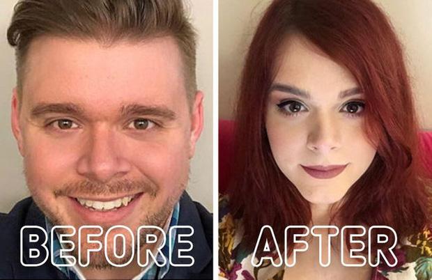 Loạt ảnh trước - sau của những ca phẫu thuật chuyển giới thành công mĩ mãn chứng tỏ khi được là chính mình bạn mới tỏa sáng rực rỡ nhất-4
