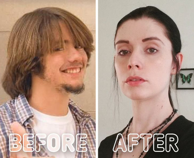 Loạt ảnh trước - sau của những ca phẫu thuật chuyển giới thành công mĩ mãn chứng tỏ khi được là chính mình bạn mới tỏa sáng rực rỡ nhất-6