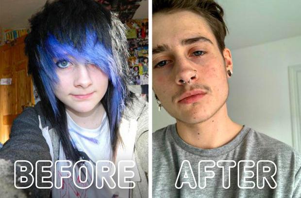 Loạt ảnh trước - sau của những ca phẫu thuật chuyển giới thành công mĩ mãn chứng tỏ khi được là chính mình bạn mới tỏa sáng rực rỡ nhất-7