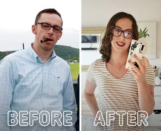 Loạt ảnh trước - sau của những ca phẫu thuật chuyển giới thành công mĩ mãn chứng tỏ khi được là chính mình bạn mới tỏa sáng rực rỡ nhất-9