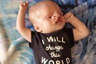 """""""Sao cô không phá thai đi"""": Câu chuyện đau lòng của một bà mẹ có con bị tật hở hàm ếch"""