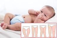 Giai đoạn đầu đời rất quan trọng, nếu muốn con có 'đôi chân dài và thẳng' trong tương lai, cha mẹ cần tránh 4 hành vi nguy hiểm này