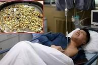 Thận của người đàn ông 32 tuổi bị 'lấp đầy' với hơn 400 viên sỏi, bác sĩ thở dài: Đúng là kiểu ăn uống có hại nhưng người trẻ hay bỏ qua
