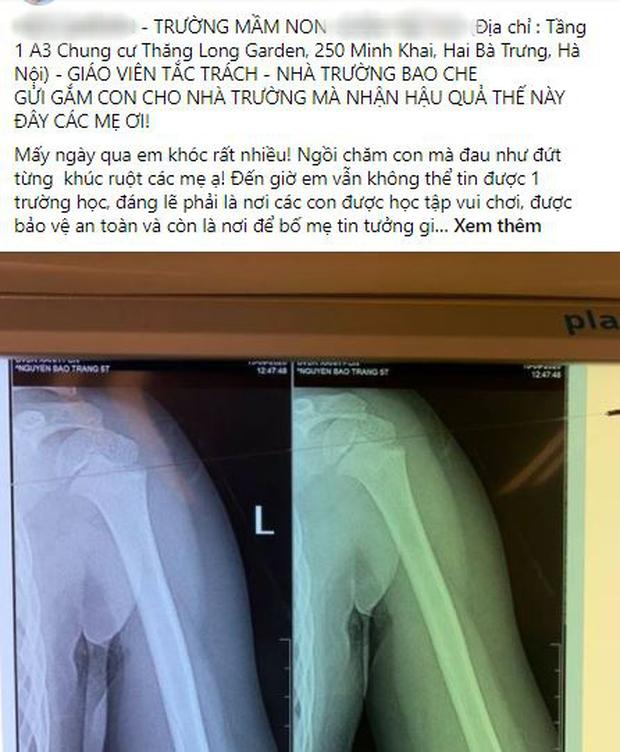 Nhà trường lên tiếng sau vụ bé gái 5 tuổi ngã gãy tay, nguy cơ bị liệt khi đang trong giờ học-1