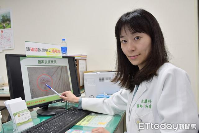 Chủ quan với vết ban đỏ trên trán, người phụ nữ không ngờ đó là dấu hiệu bệnh ung thư-3