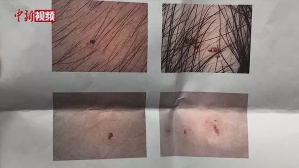 Vụ trẻ mẫu giáo có vết kim đâm kỳ lạ: Cảnh sát bắt được 3 cô giáo tàn độc, hiệu trưởng trường mẫu giáo bị cách chức-2