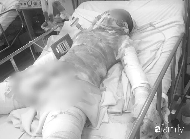 Thương tâm: Thiếu nữ bị bỏng đến 95%, nghi do bạn trai tưới xăng đốt tại vườn cao su ở Bình Dương-1
