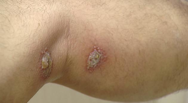 Gần 100 người nhập viện mỗi ngày vì tiếp xúc với kiến ba khoang-1