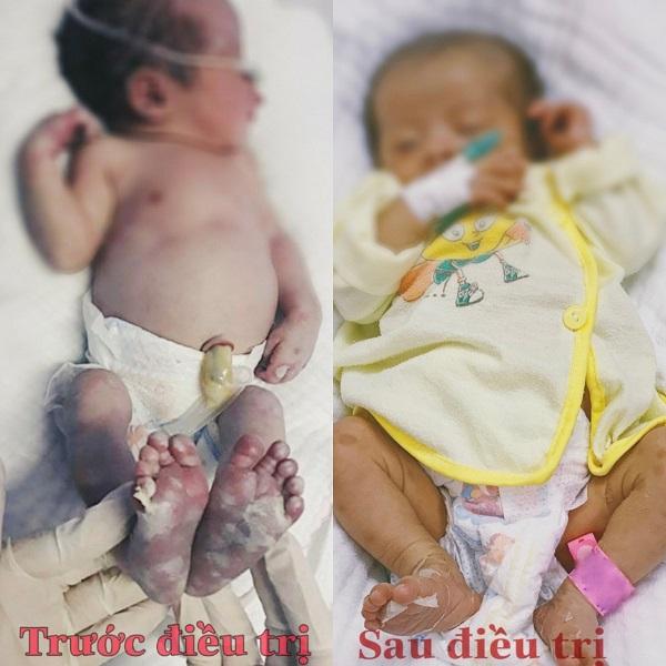Bé sơ sinh vừa chào đời đã mắc giang mai, sau 20 ngày điều trị, bé đã ổn định-1